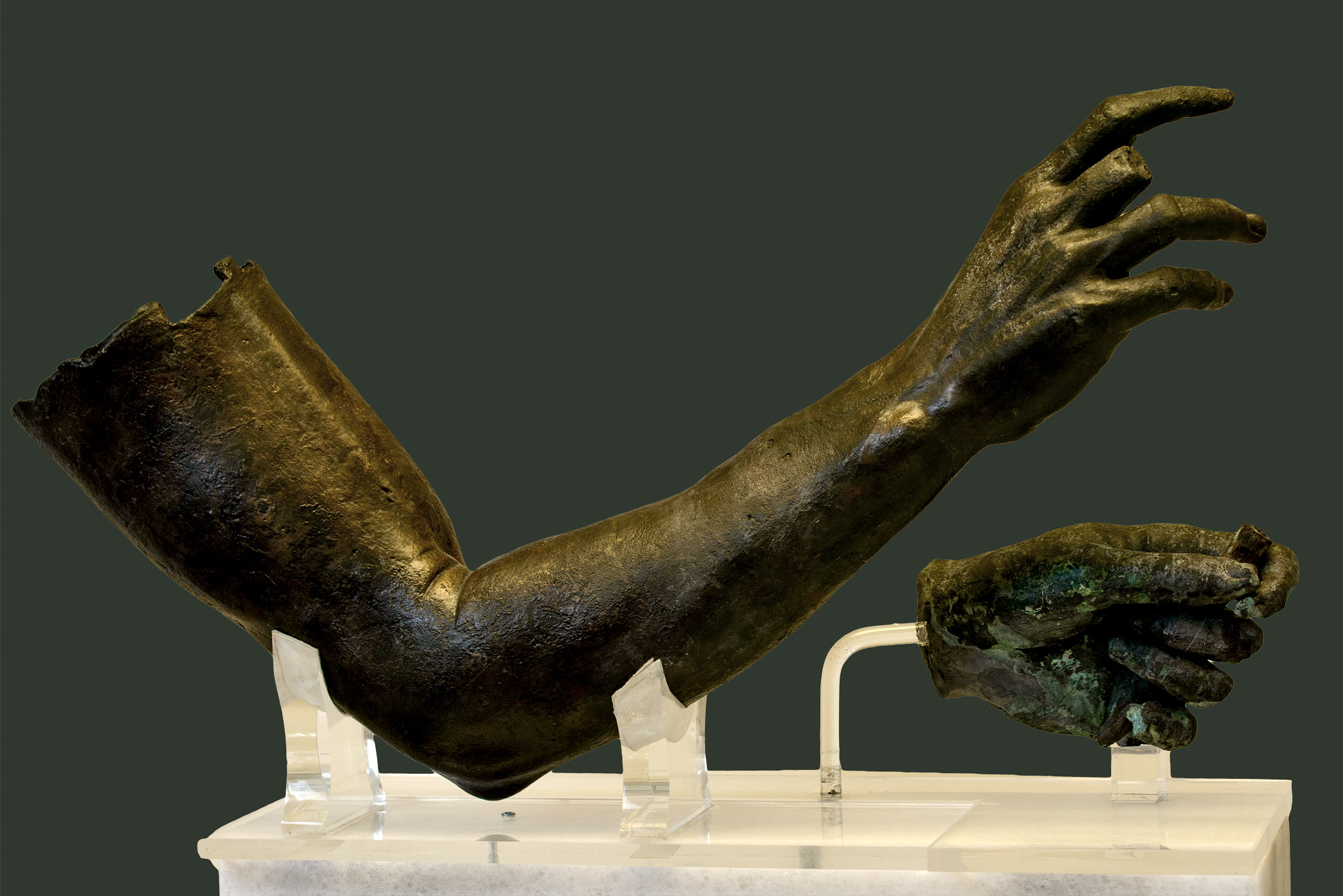 Philosopher (arms from a statue). Bronze. Ca. 240 BCE. Inv. Nos. X. 15105 (right), X. 15108 (left). Athens, National Archaeological Museum